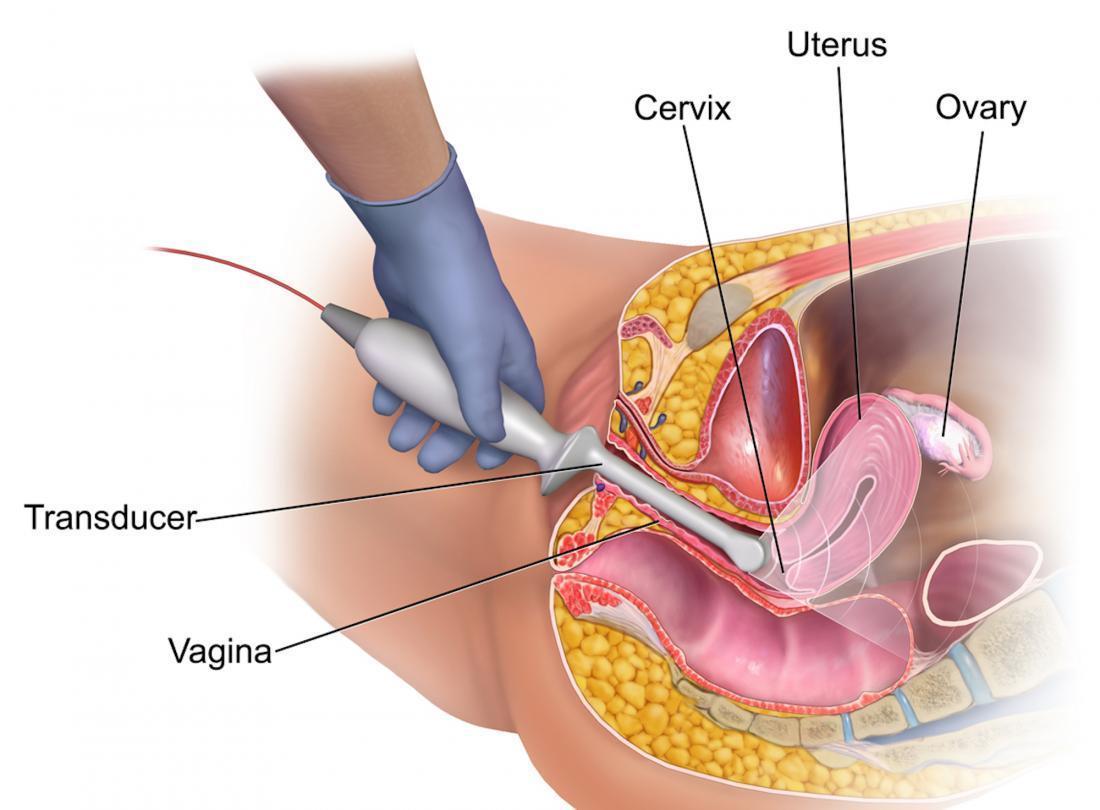 https://i0.wp.com/cdn-prod.medicalnewstoday.com/content/images/articles/323/323041/diagram-of-transvaginal-ultrasound-br-image-credit-bruceblaus-2015-br.jpg?w=1155&h=1701